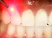 Луч лазера поможет восстановить повреждённый зуб