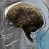 «Смерть» мозга – не приговор: ученые планируют оживлять отмершие ткани